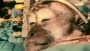 transplantul-de-cap---stiinta-tehnica-10