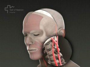 transplantul-de-cap---stiinta-tehnica-7